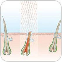 Anwendung von IPL auf der Haut