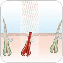 erwärmt sich der Haarfolikel auf 70° C werden die Germzellen zerstört